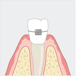 치아교정 일러스트