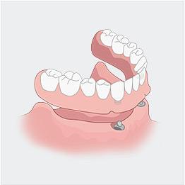 치아구조 일러스트