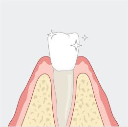 건강한 치아 일러스트